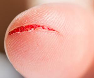 Dog Bite Lip Laceration